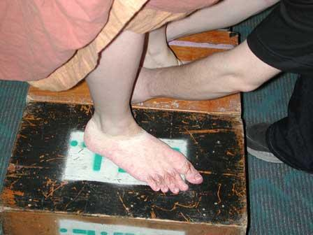 aching puffy feet and dry skin