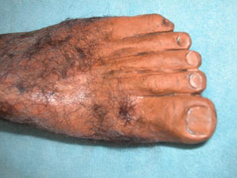 Big Hairy Toes 34
