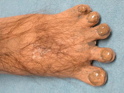 Hairy Feet Pics 48